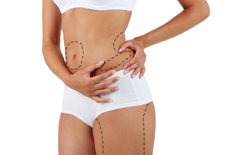 Liposuction. Slim body concept fat 10 Most Competitive Residency Programs in US