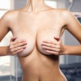 12 Best, Cheapest Countries for Breast Implants and Augmentation in the World