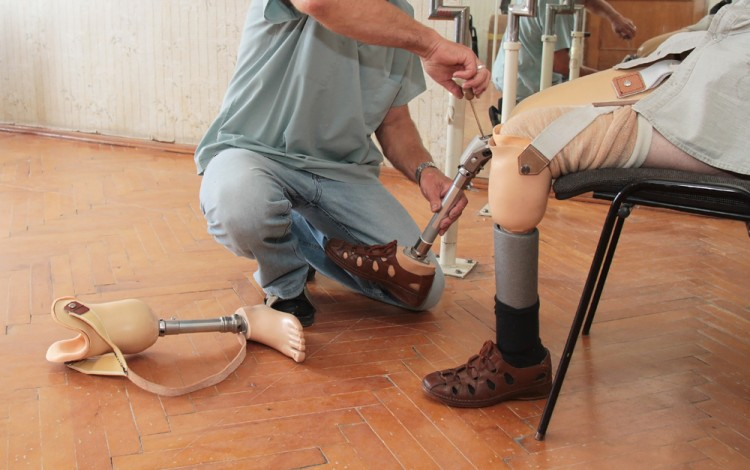 leg, limb, care, substitute, rehabilitate, amputee, artificial, medical, weight, amputation, adversity, accident, distribution, disability, balance, prosthesis, walk, rehabilitation,