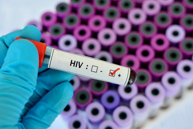 15 Countries That Have the Most AIDS Cases in the World
